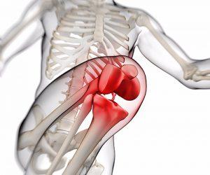 Il dolore femoro-rotuleo 2° parte